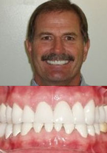 after-sedation-dentistry