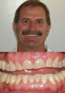 before-sedation-dentistry