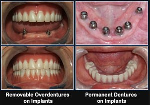 tijuana dental implants