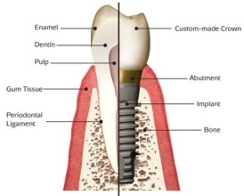 SINGLE-OR-MULTIPLE-TEETH-REPLACEMENT-WITH-IMPLANTS-1z5