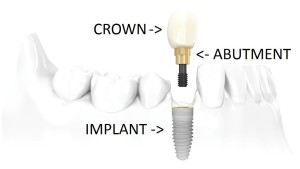 SINGLE-OR-MULTIPLE-TEETH-REPLACEMENT-WITH-IMPLANTS-2z5