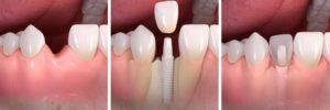 SINGLE-OR-MULTIPLE-TEETH-REPLACEMENT-WITH-IMPLANTS-3z5