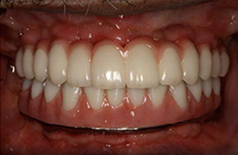 All on 4 Dental Implants in Tijuana After