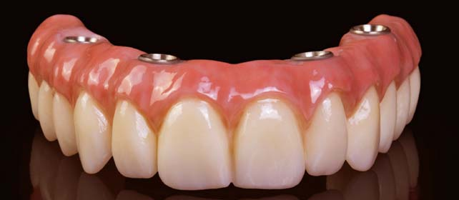 √ All on 4 Dental Implants Mexico - Starting Full Arch From 8499