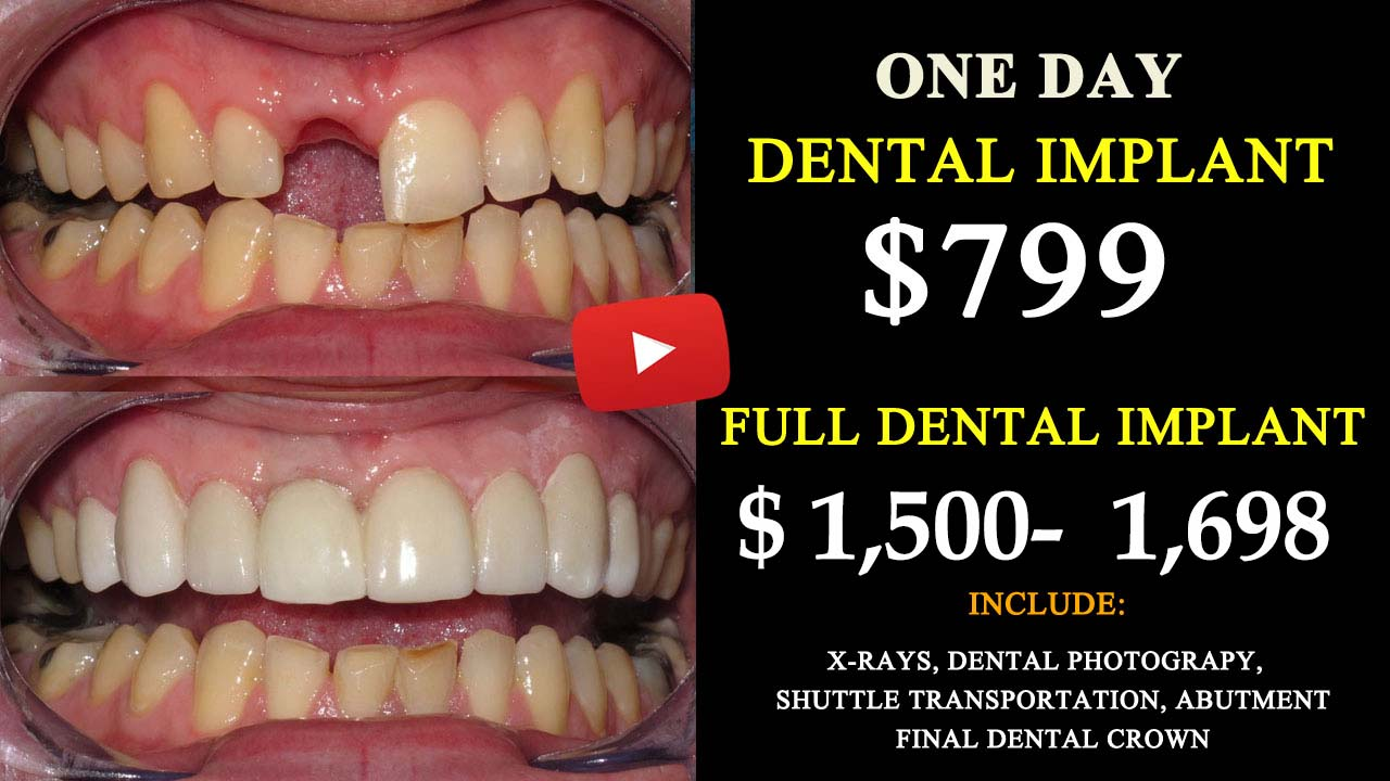 Dental Implant Quotes Td Auto Insurance Quotes Online