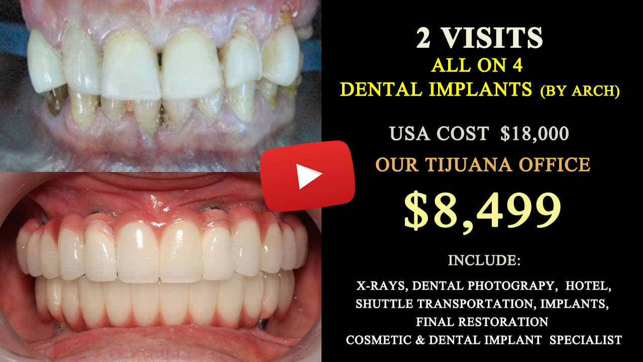 All on 6 Dental Implants in Tijuana Mexico